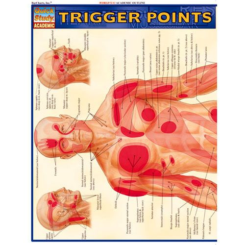 Trigger Points Study Chart   $5.99
